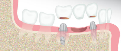 Dental Implants Arlington Heights